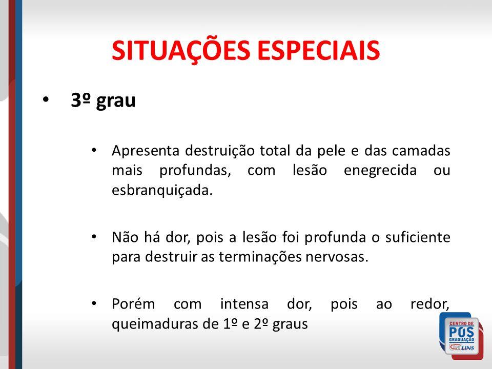 SITUAÇÕES ESPECIAIS 3º grau