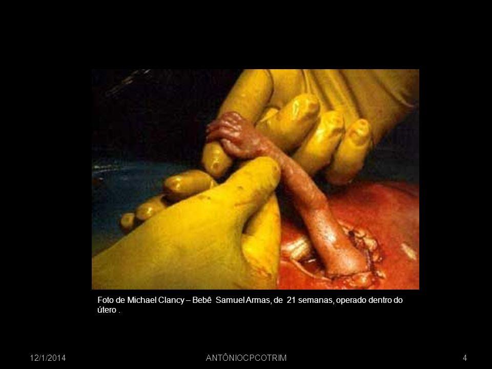 Imagem da internetFoto de Michael Clancy – Bebê Samuel Armas, de 21 semanas, operado dentro do. útero .