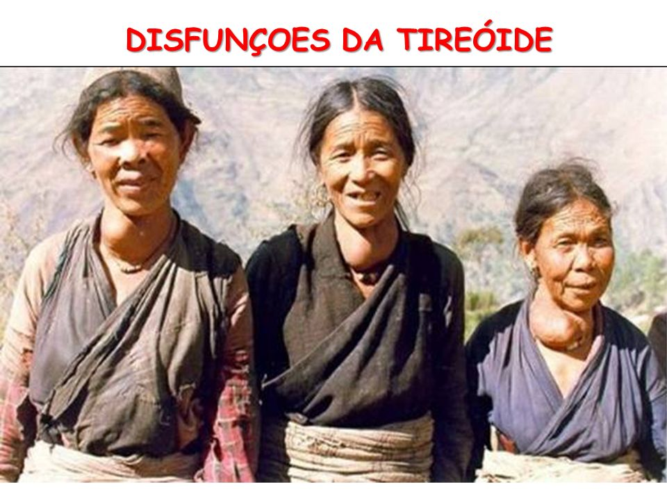 DISFUNÇOES DA TIREÓIDE