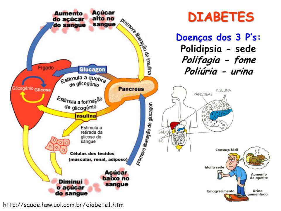 DIABETES Doenças dos 3 P's: Polidipsia - sede Polifagia - fome