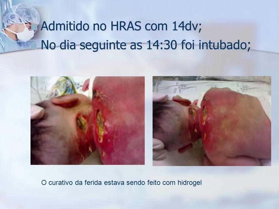 Admitido no HRAS com 14dv; No dia seguinte as 14:30 foi intubado;