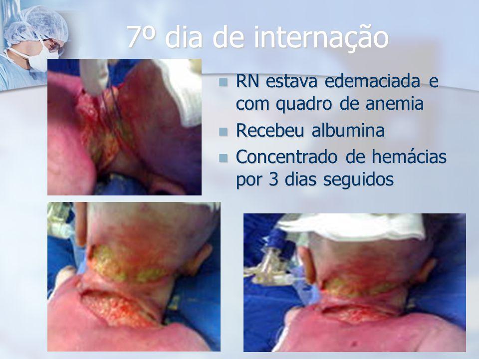 7º dia de internação RN estava edemaciada e com quadro de anemia