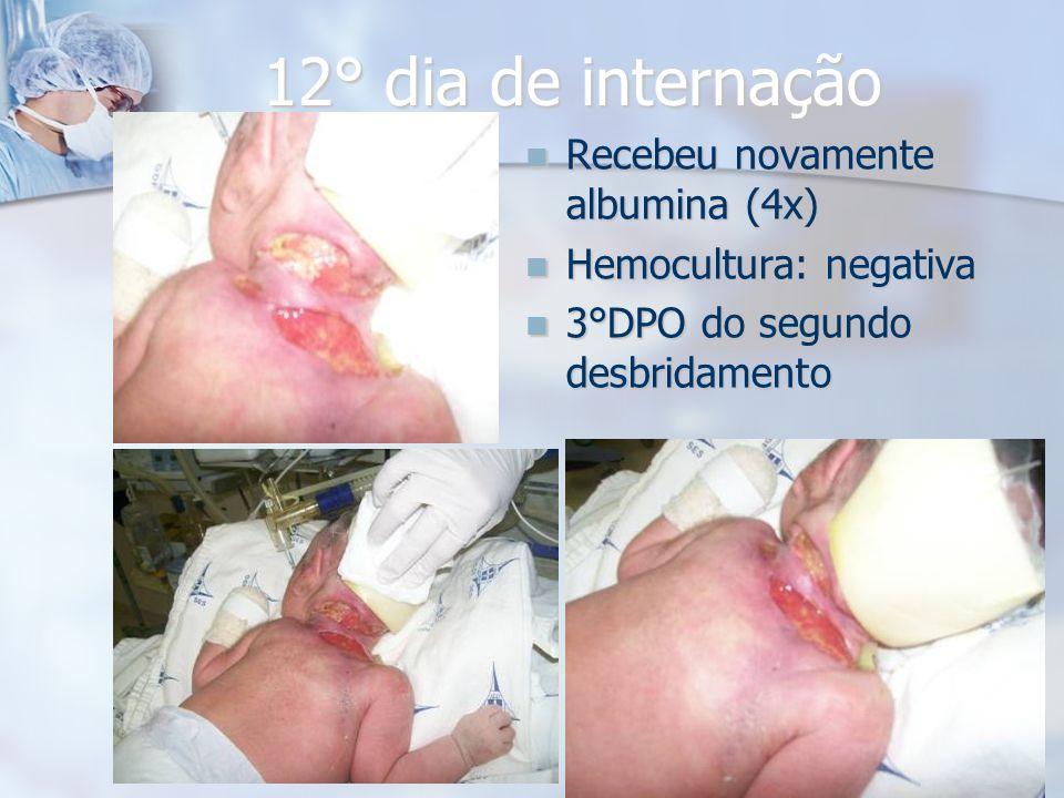 12° dia de internação Recebeu novamente albumina (4x)