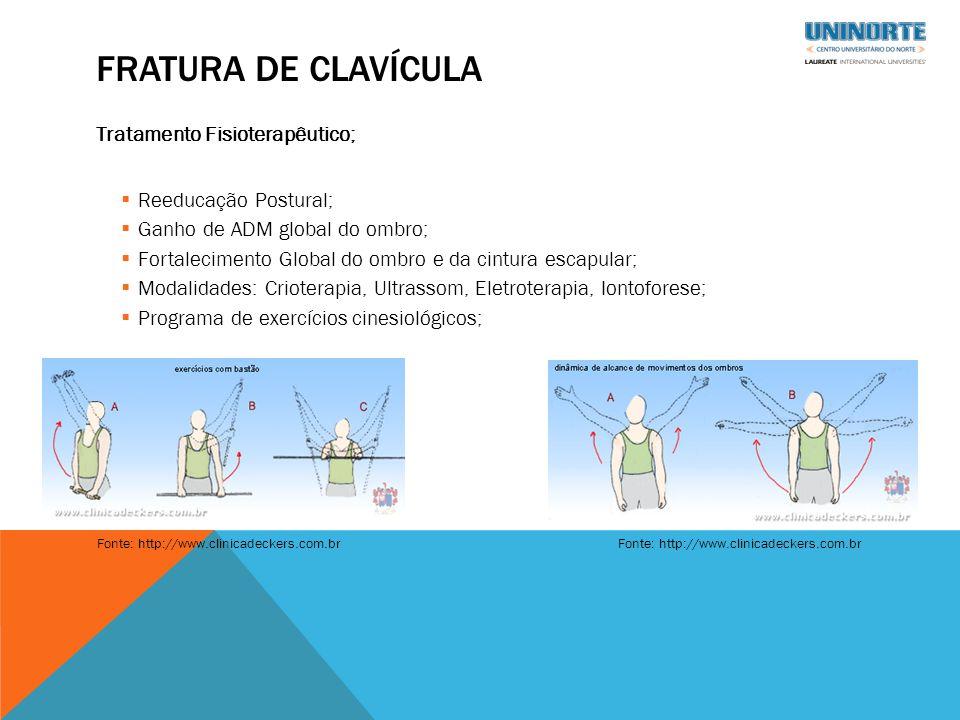 Fratura de clavícula Tratamento Fisioterapêutico; Reeducação Postural;