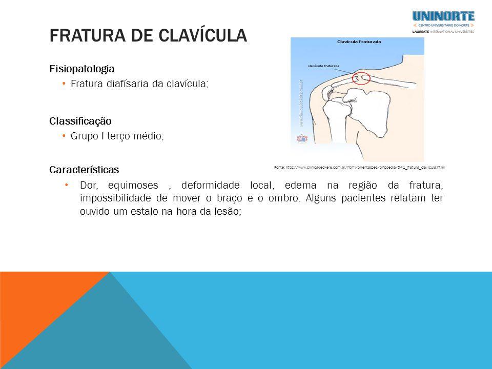 Fratura de clavícula Fisiopatologia Fratura diafísaria da clavícula;