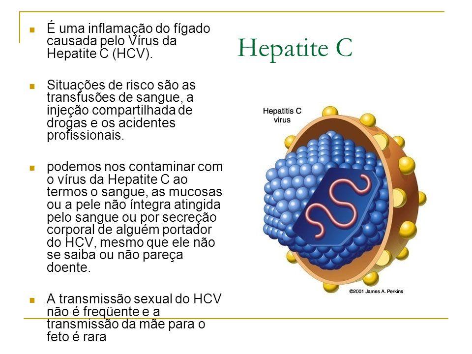 É uma inflamação do fígado causada pelo Vírus da Hepatite C (HCV).