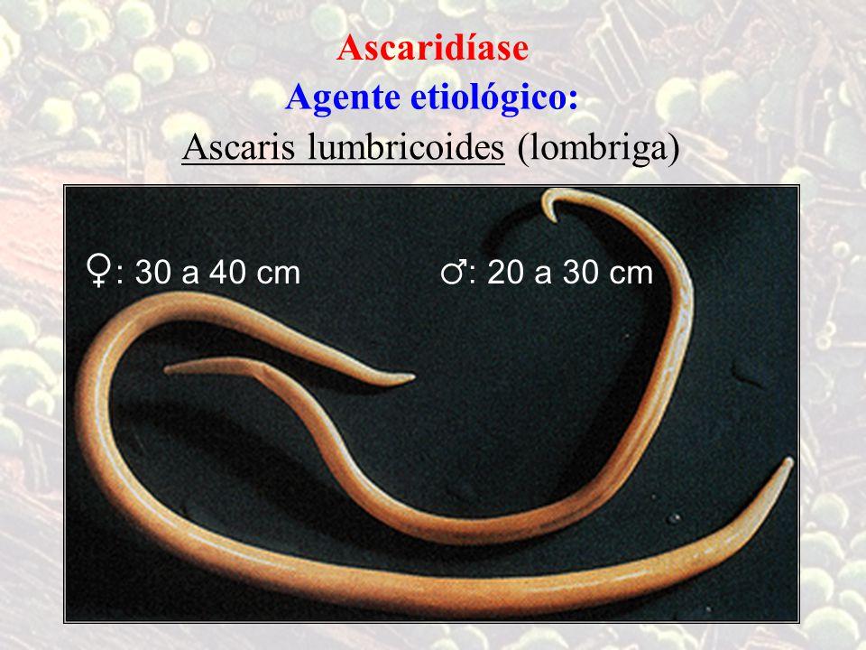 ♀: Ascaridíase Agente etiológico: Ascaris lumbricoides ( lombriga) ♂: