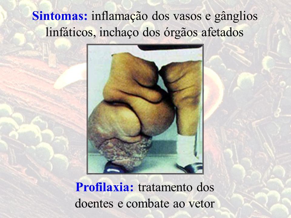 Sintomas: inflamação dos vasos e gânglios. linfáticos, inchaço dos órgãos afetados. Profilaxia: tratamento dos.