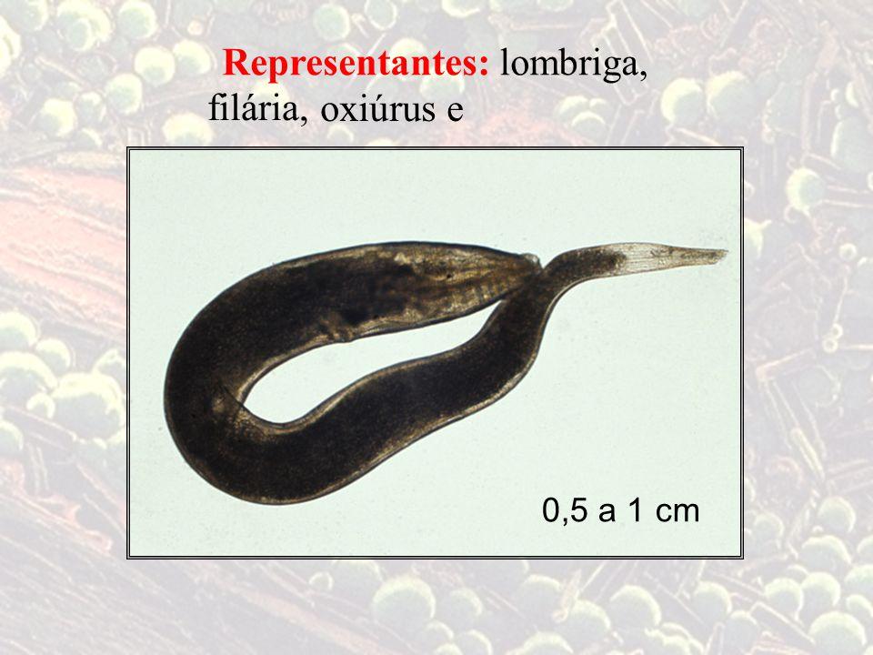 Representantes: lombriga, filária, oxiúrus e 0,5 a 1 cm