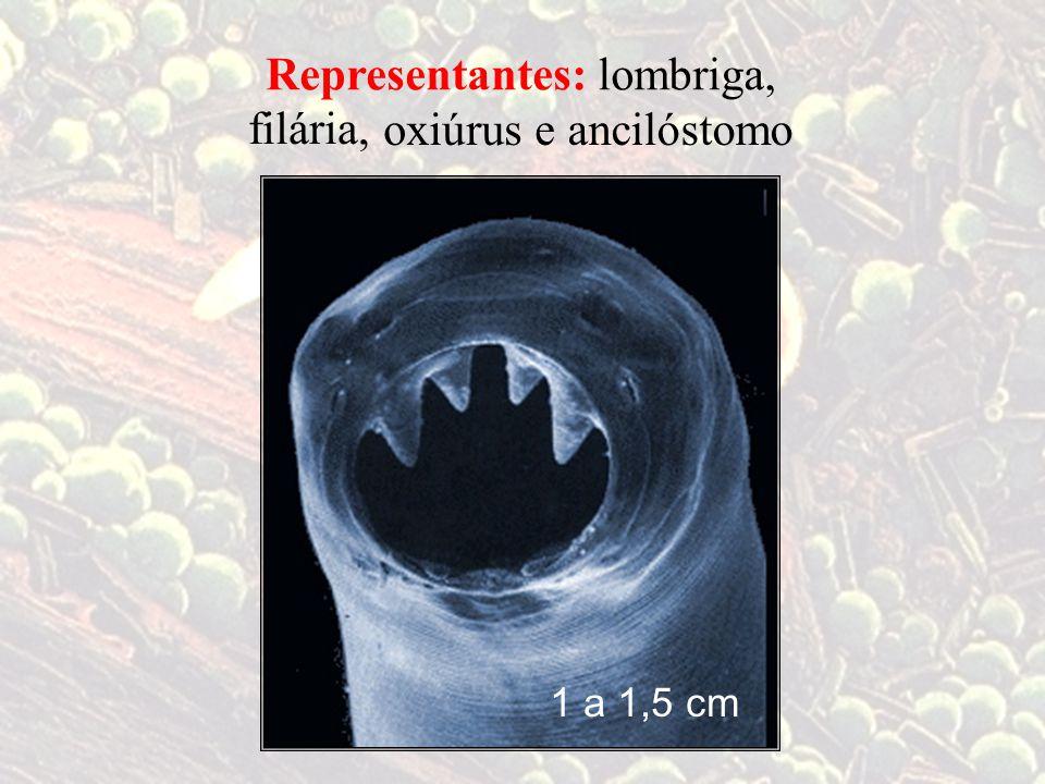 Representantes: lombriga, filária, oxiúrus e ancilóstomo 1 a 1,5 cm
