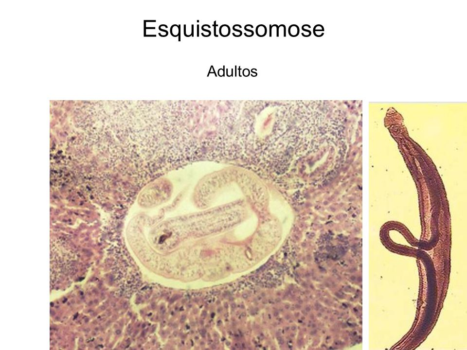 Esquistossomose Adultos