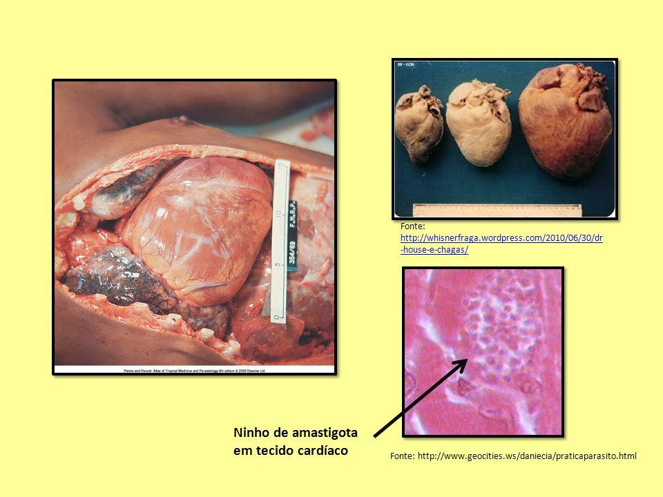 Ninho de amastigota em tecido cardíaco