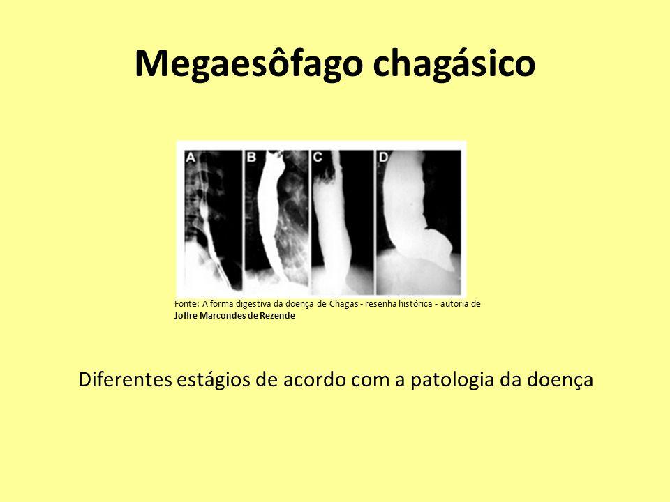 Megaesôfago chagásico