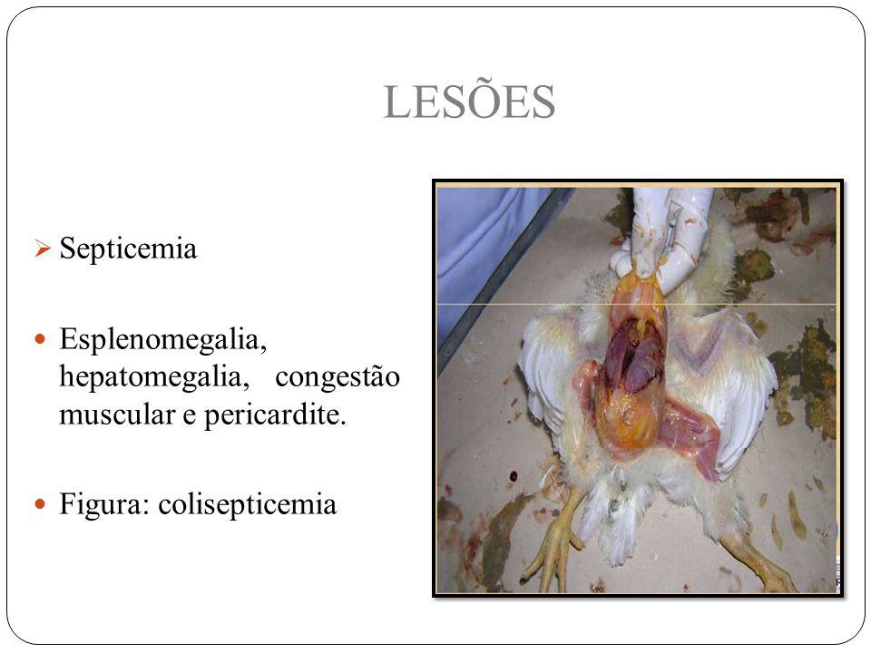 LESÕES Septicemia. Esplenomegalia, hepatomegalia, congestão muscular e pericardite.