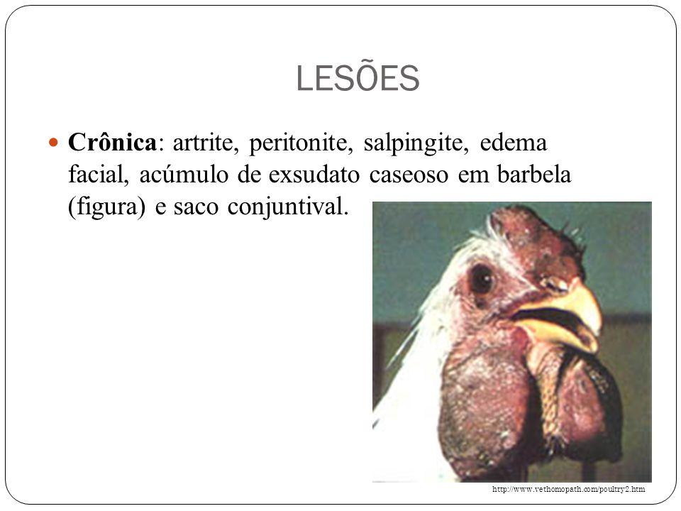 LESÕES Crônica: artrite, peritonite, salpingite, edema facial, acúmulo de exsudato caseoso em barbela (figura) e saco conjuntival.