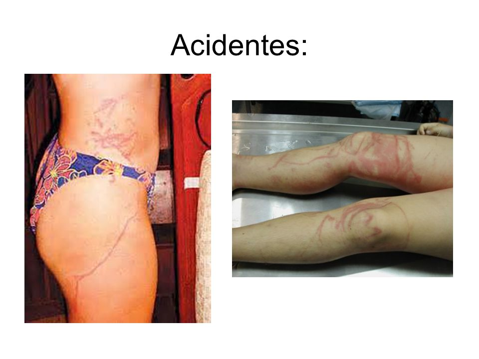 Acidentes: