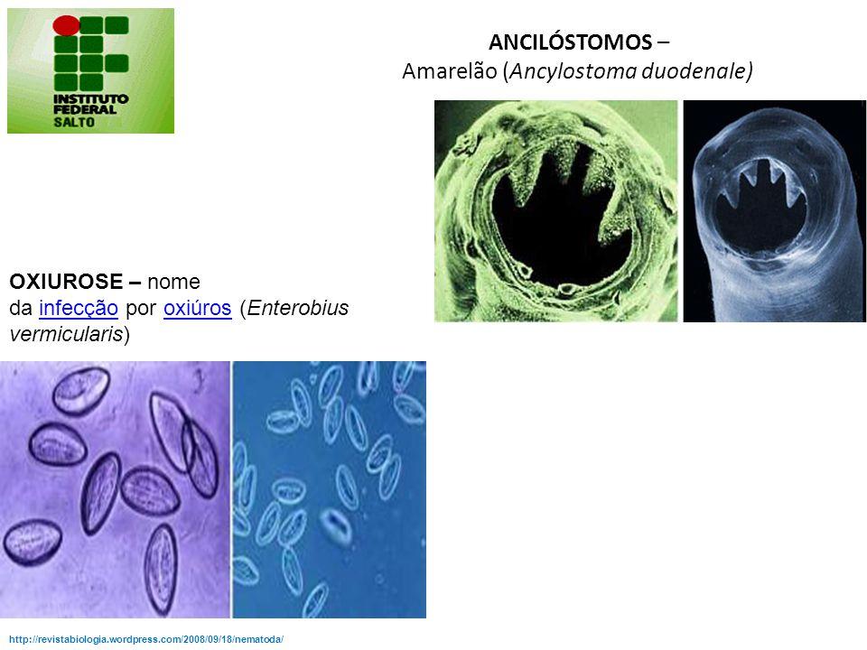 ANCILÓSTOMOS – Amarelão (Ancylostoma duodenale)