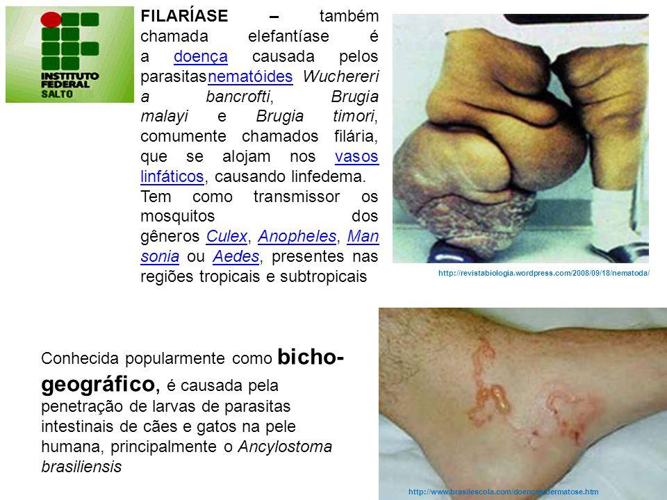 FILARÍASE – também chamada elefantíase é a doença causada pelos parasitasnematóides Wuchereria bancrofti, Brugia malayi e Brugia timori, comumente chamados filária, que se alojam nos vasos linfáticos, causando linfedema.