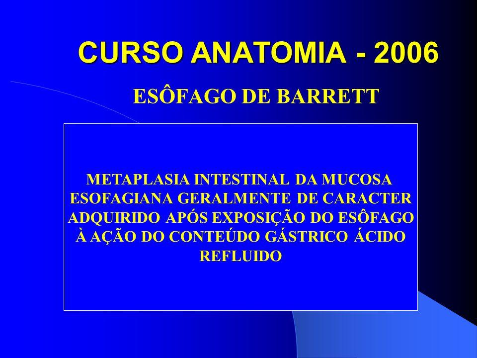 CURSO ANATOMIA - 2006 ESÔFAGO DE BARRETT