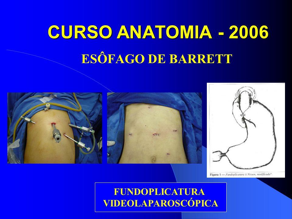 CURSO ANATOMIA - 2006 ESÔFAGO DE BARRETT FUNDOPLICATURA