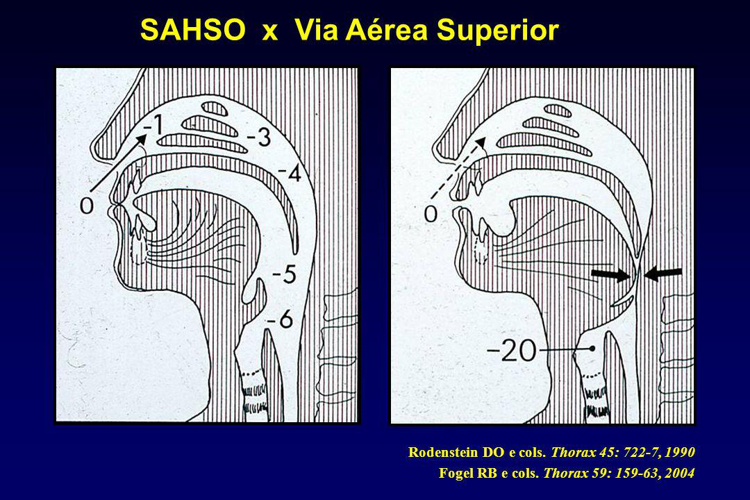 SAHSO x Via Aérea Superior