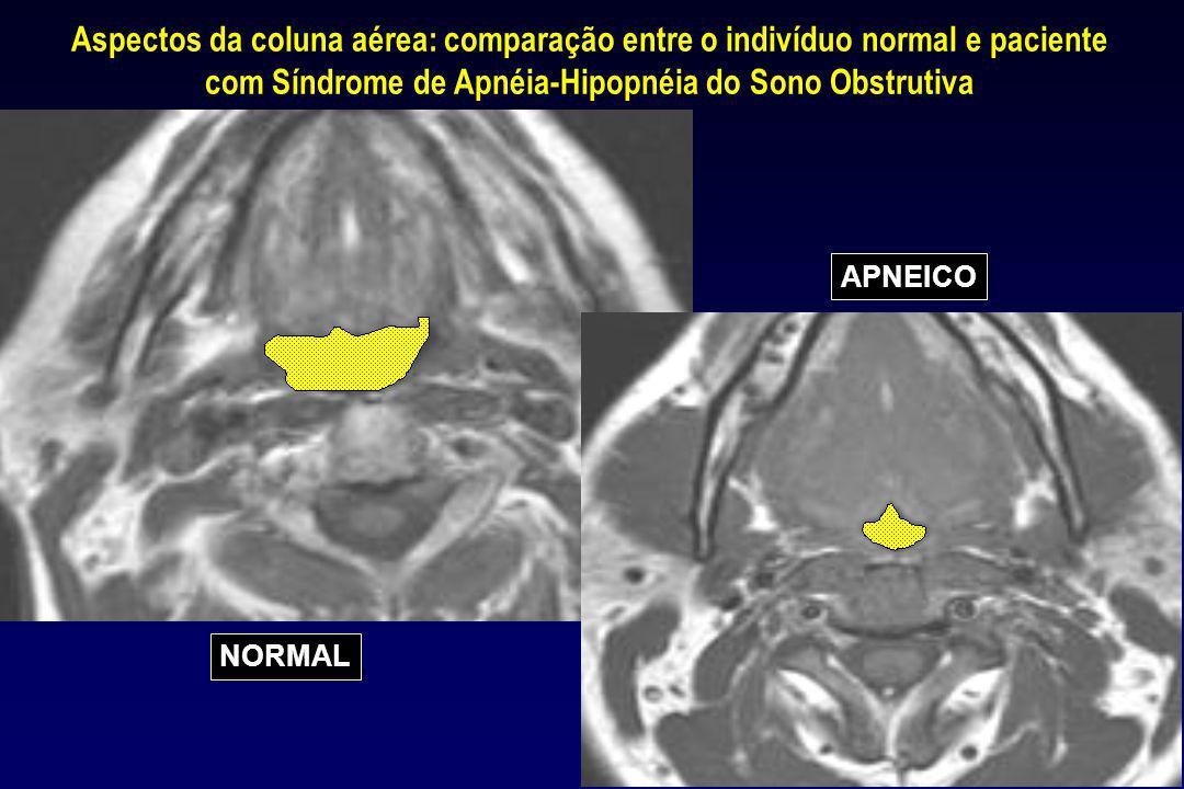 Aspectos da coluna aérea: comparação entre o indivíduo normal e paciente com Síndrome de Apnéia-Hipopnéia do Sono Obstrutiva