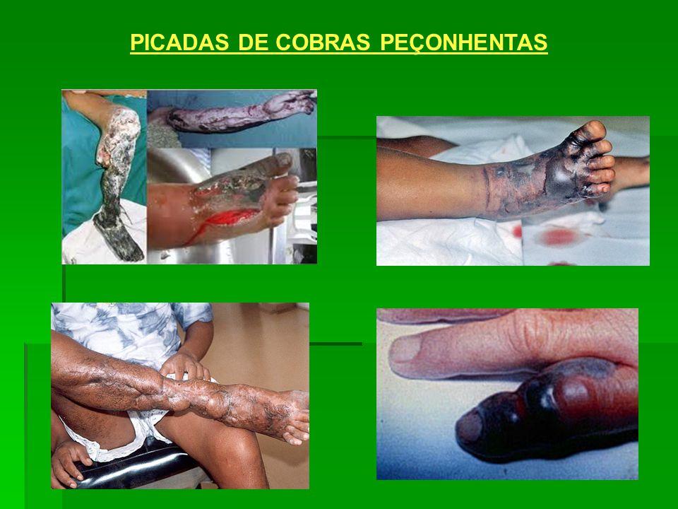 PICADAS DE COBRAS PEÇONHENTAS