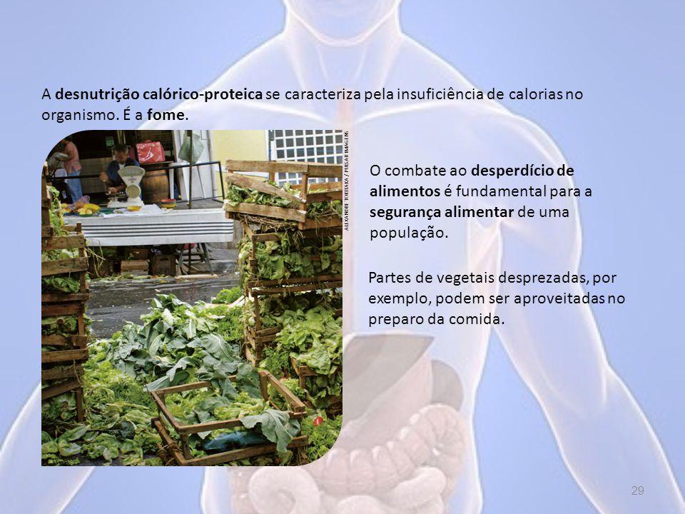 A desnutrição calórico-proteica se caracteriza pela insuficiência de calorias no organismo. É a fome.