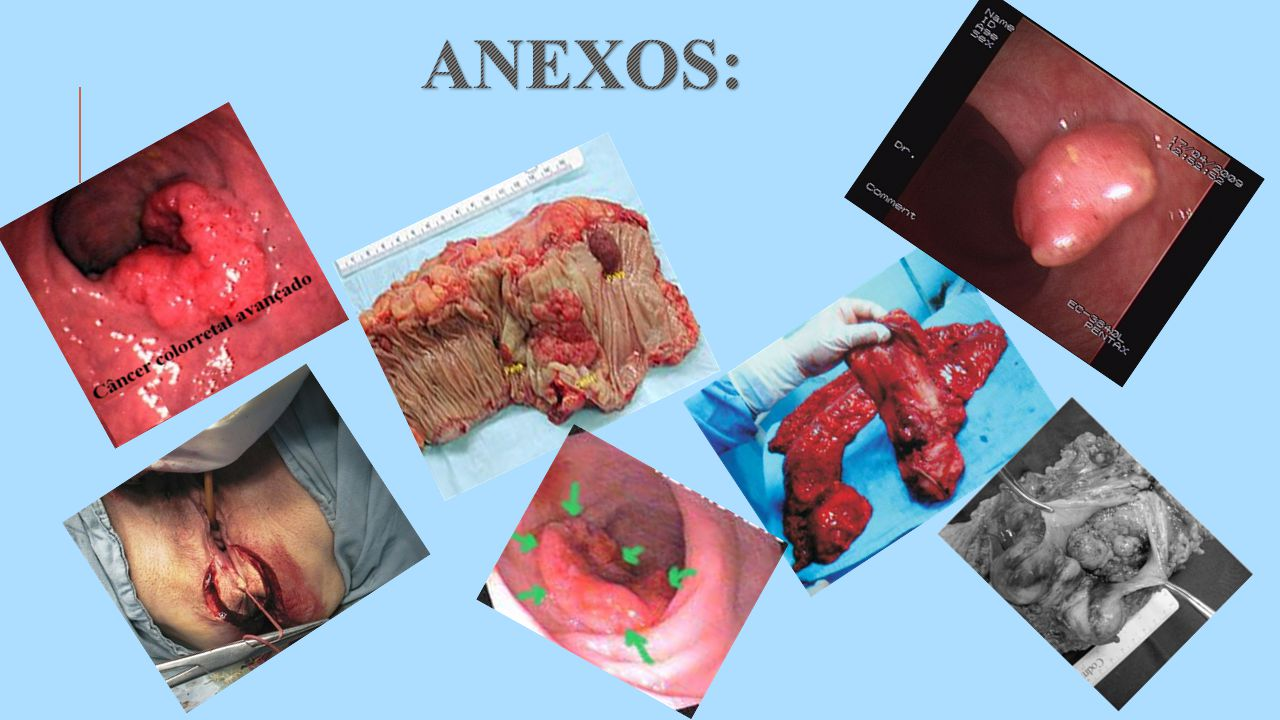 ANEXOS: