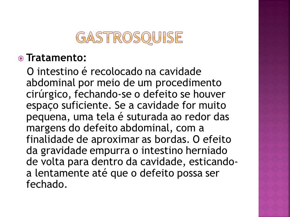 Gastrosquise Tratamento: