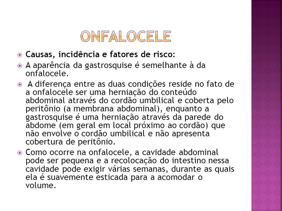 onfalocele Causas, incidência e fatores de risco: