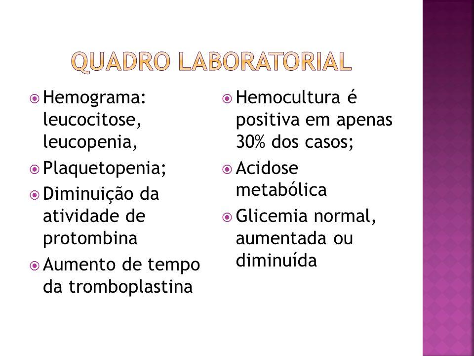 QUADRO LABORATORIAL Hemograma: leucocitose, leucopenia, Plaquetopenia;