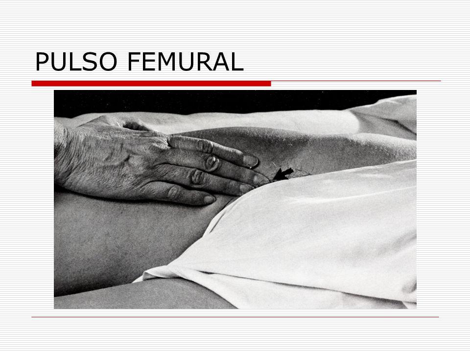 PULSO FEMURAL