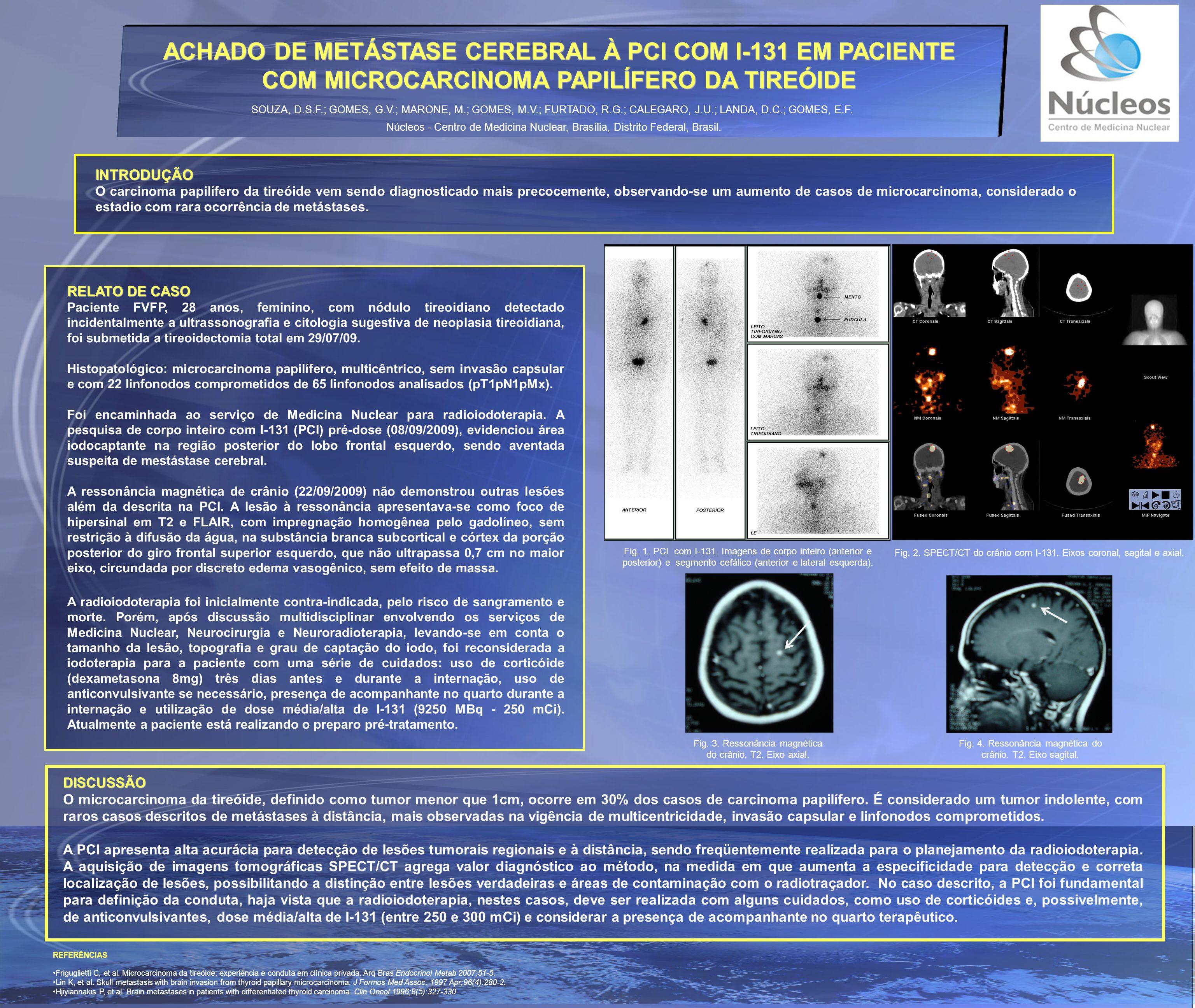 ACHADO DE METÁSTASE CEREBRAL À PCI COM I-131 EM PACIENTE COM MICROCARCINOMA PAPILÍFERO DA TIREÓIDE