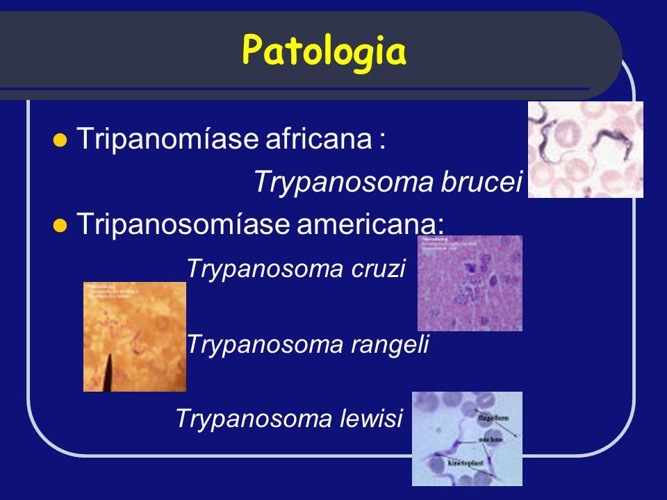 Patologia Tripanomíase africana : Trypanosoma brucei