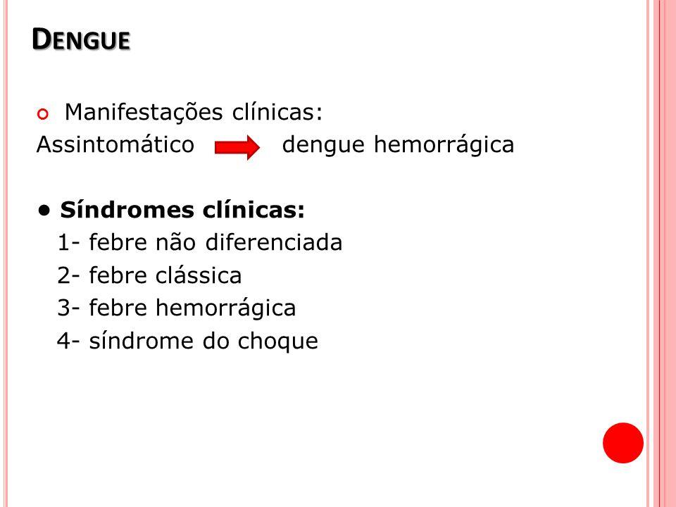 Dengue Manifestações clínicas: Assintomático dengue hemorrágica