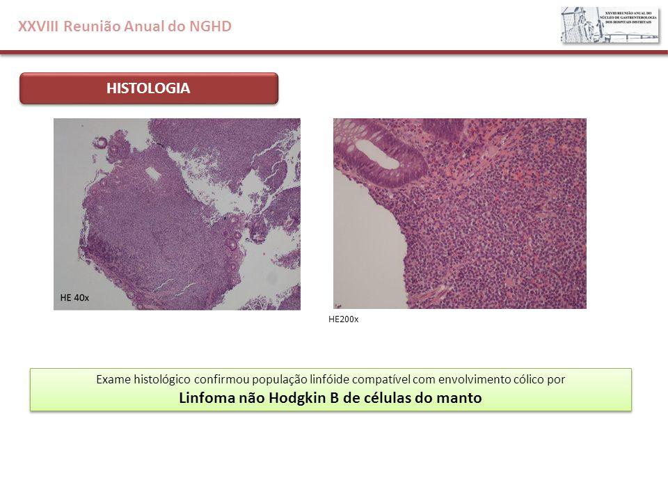 Linfoma não Hodgkin B de células do manto