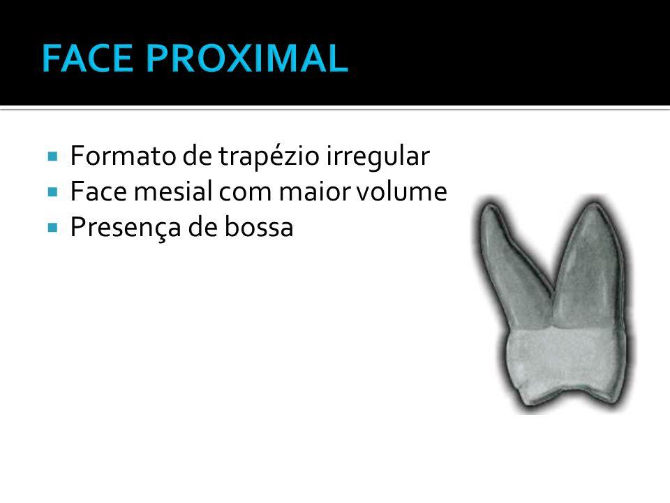 FACE PROXIMAL Formato de trapézio irregular