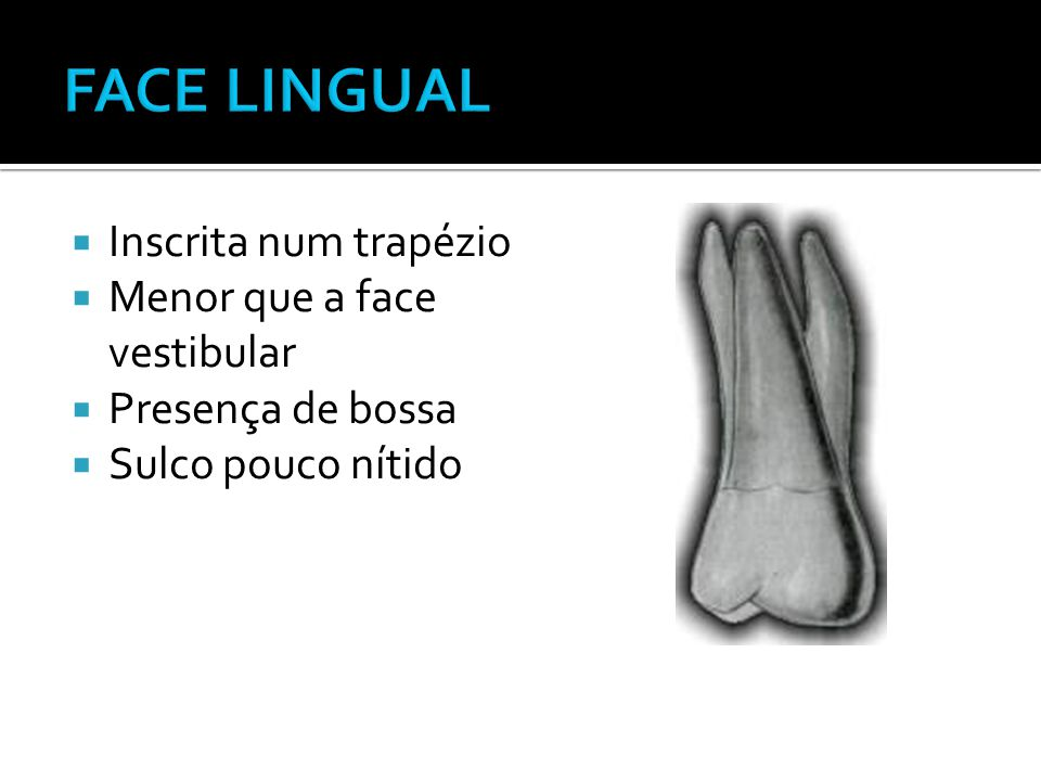 FACE LINGUAL Inscrita num trapézio Menor que a face vestibular