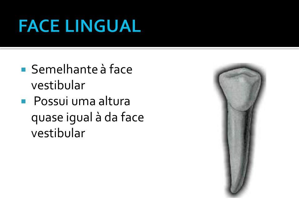 FACE LINGUAL Semelhante à face vestibular