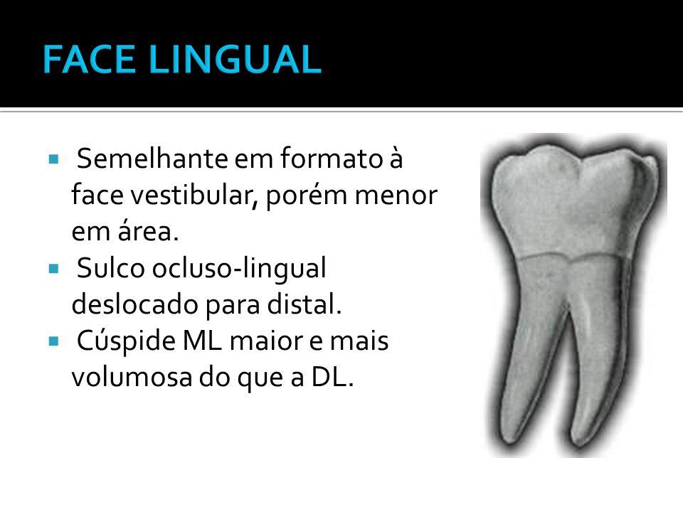 FACE LINGUAL Semelhante em formato à face vestibular, porém menor em área. Sulco ocluso-lingual deslocado para distal.
