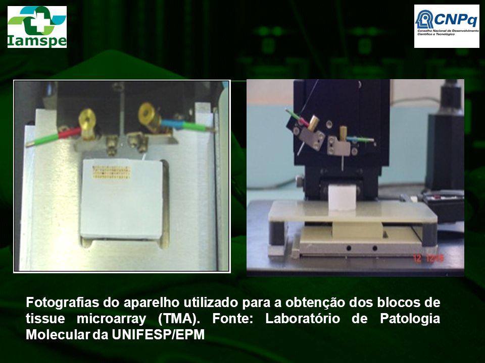 Fotografias do aparelho utilizado para a obtenção dos blocos de tissue microarray (TMA).