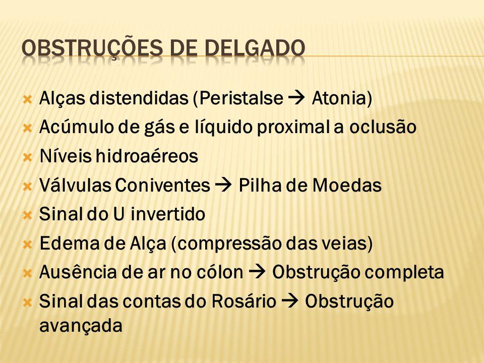 Obstruções de delgado Alças distendidas (Peristalse  Atonia)