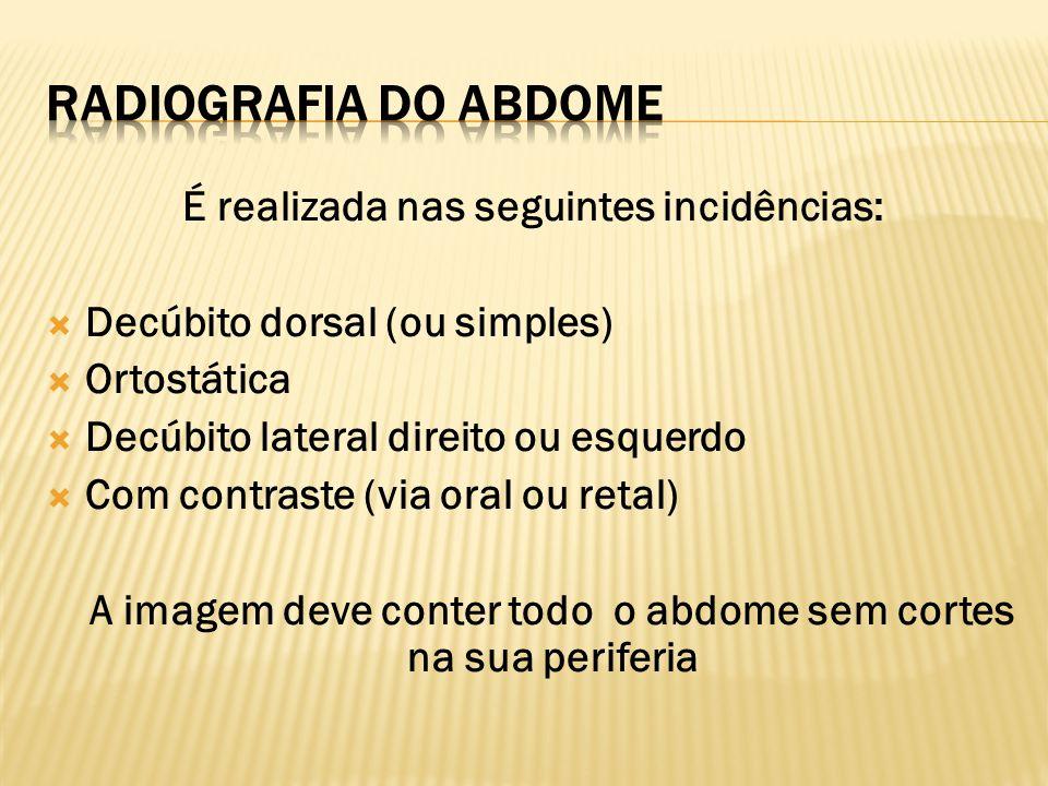 Radiografia do Abdome É realizada nas seguintes incidências: