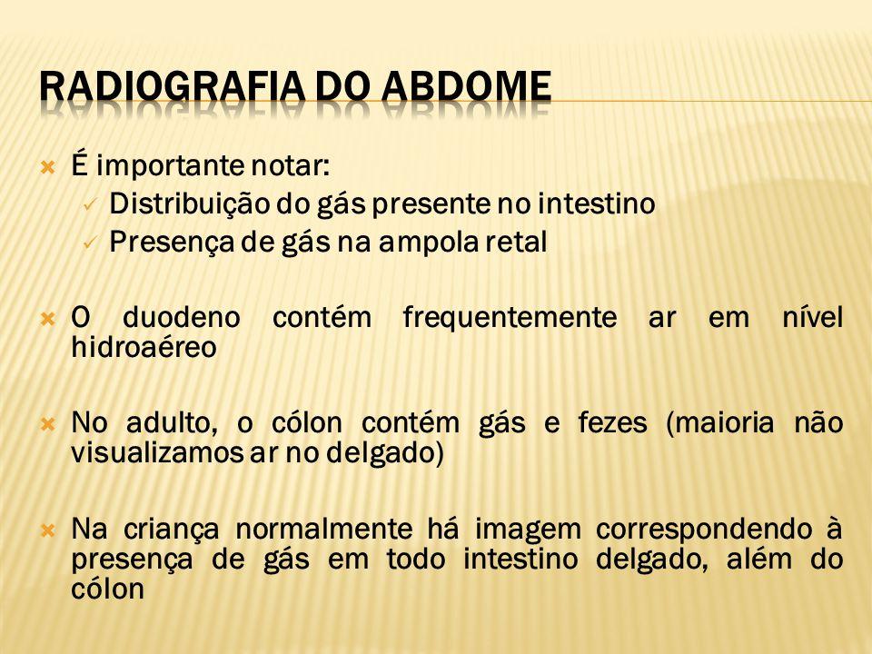 Radiografia do Abdome É importante notar: