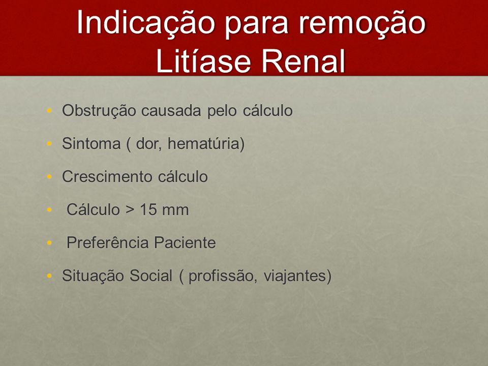 Indicação para remoção Litíase Renal