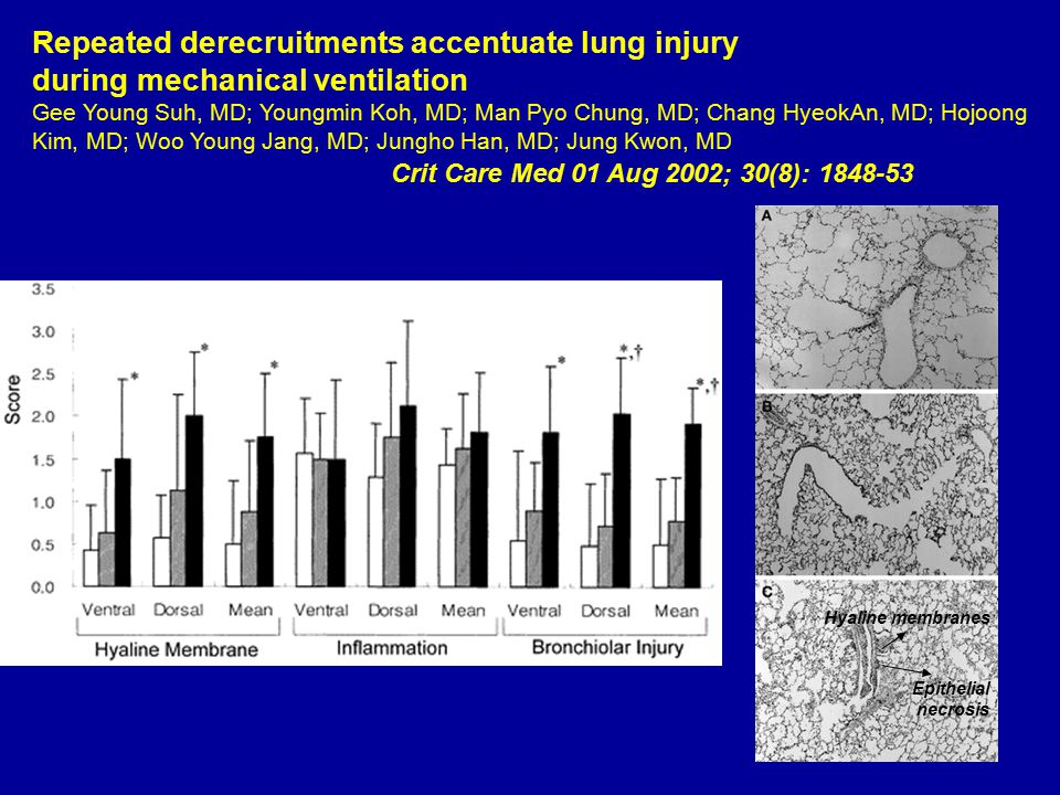 Repeated derecruitments accentuate lung injury during mechanical ventilation