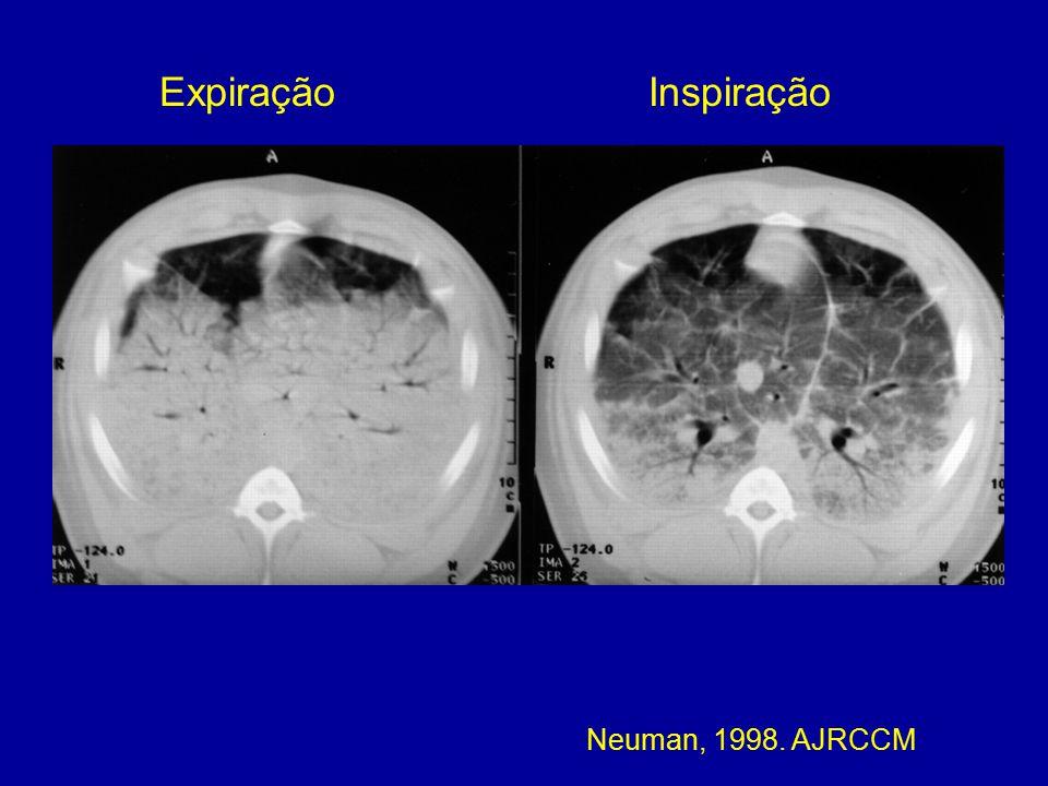 Expiração Inspiração Neuman, 1998. AJRCCM