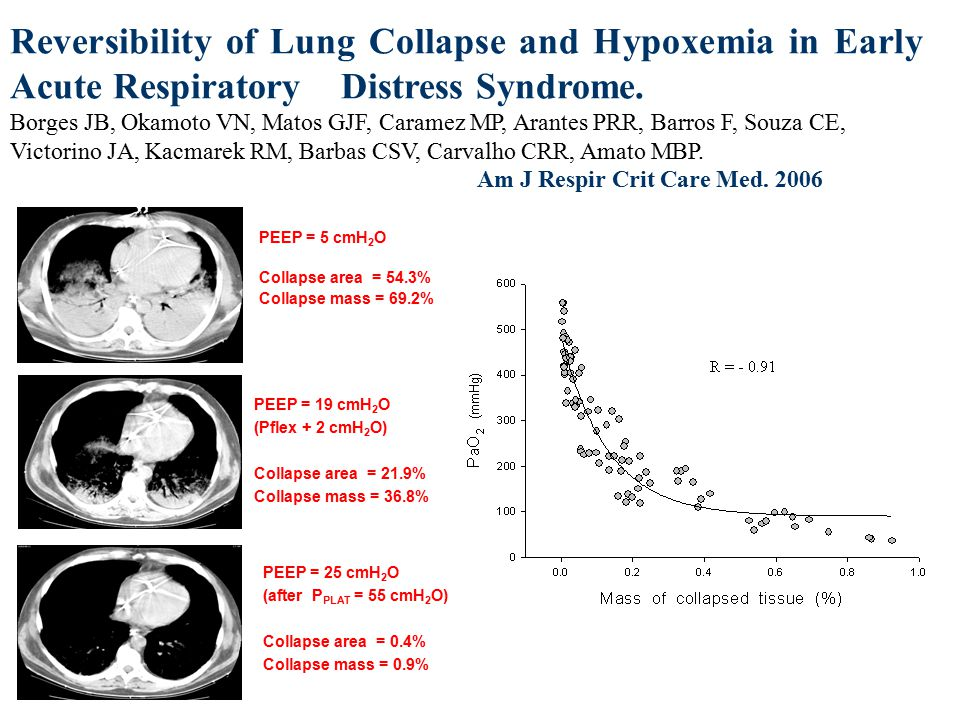 Reversibility of Lung Collapse and Hypoxemia in Early Acute Respiratory Distress Syndrome.