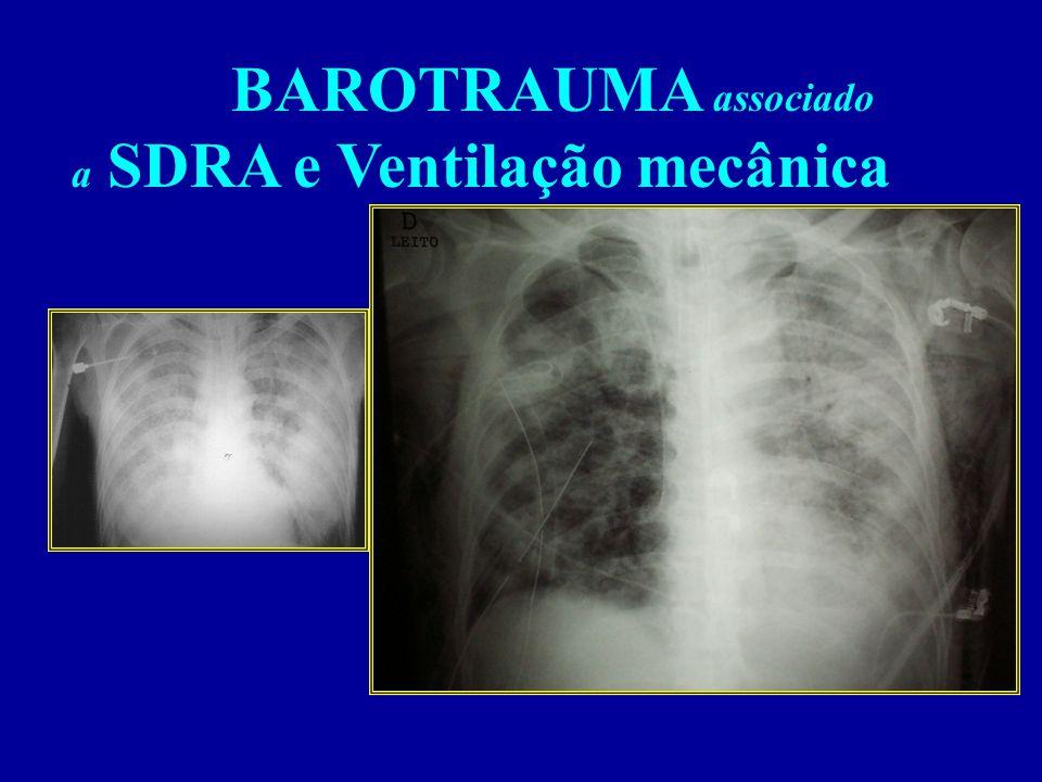 BAROTRAUMA associado a SDRA e Ventilação mecânica